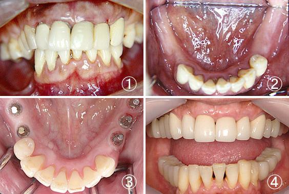 インプラント | 立花歯科医院 熊本市東区新外の歯医者 インプラント・矯正・歯周病・口腔外科・小児歯科・治療・歯科検診
