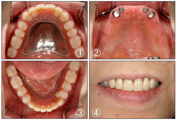 入歯 | 立花歯科医院 熊本市東区新外の歯医者 インプラント・矯正・歯周病・口腔外科・小児歯科・治療・歯科検診