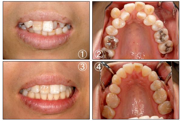 矯正歯科 | 立花歯科医院 熊本市東区新外の歯医者 インプラント・矯正・歯周病・口腔外科・小児歯科・治療・歯科検診