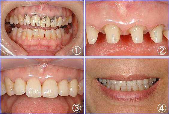 ホワイトニング | 立花歯科医院 熊本市東区新外の歯医者 インプラント・矯正・歯周病・口腔外科・小児歯科・治療・歯科検診
