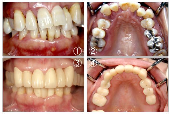 歯周病 | 立花歯科医院 熊本市東区新外の歯医者 インプラント・矯正・歯周病・口腔外科・小児歯科・治療・歯科検診