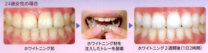 ホワイトニングについて | 立花歯科医院 熊本市東区新外の歯医者 インプラント・矯正・歯周病・口腔外科・小児歯科・治療・歯科検診